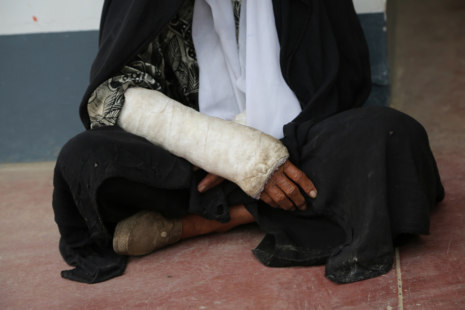Emergency Hospital in Afghanistan.  Babo 60 years old, she was hit by a shrapnel fired by Afghan government forces during a fight with Taliban in Marjah district of Helmand.  Now she is being treated in the Emergency hospital in Lashkargah.