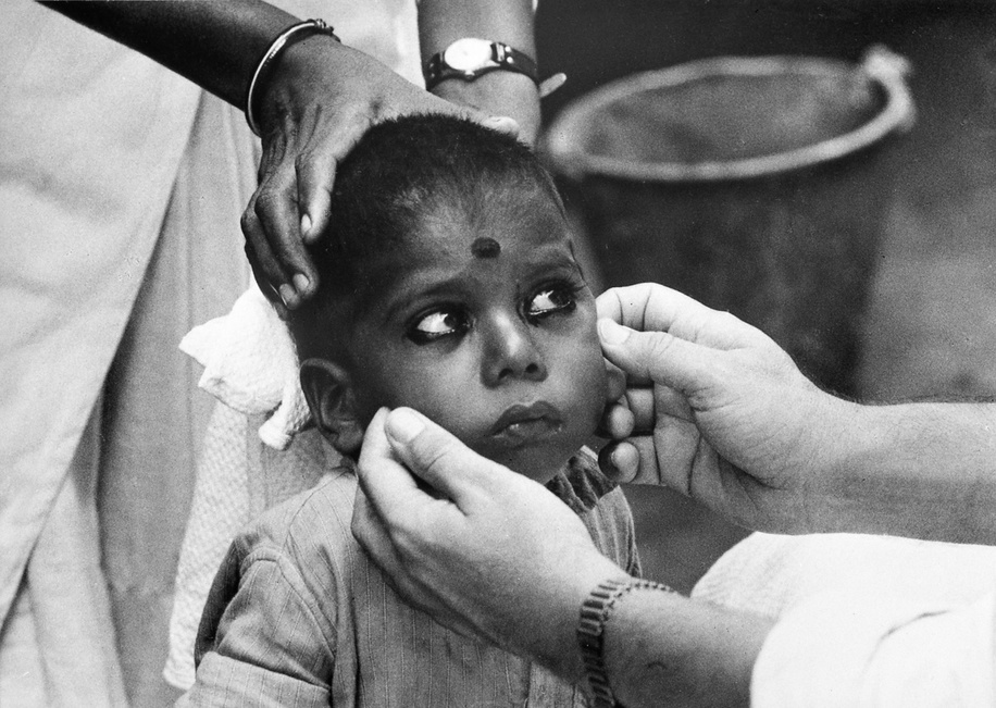 Eyes that need weep no more. In 1959 it was estimated that nearly 400 million people suffered from trachoma. Though this eye infection does not kill, it can last a lifetime if untreated. Its victims often become blind. In India, trachoma was the largest single cause of preventable blindness. In some rural areas of Northern India the infection rate was as high as 80-90 per cent of the total population. A WHO-assisted pilot project trachoma team based at the Gandhi Eye Hospital in Aligarh, Uttar Pradesh, visited the region village by village, examining patients and organizing antibiotic treatment, and carrying out research to determinate the ways in which infection spread. The methods of attack proved effective in preventing blindness but complete control of trachoma and associated bacterial conjunctivitis requires the support of long-term health education and environmental sanitation programmes.  The manner of applying eye cosmetics (