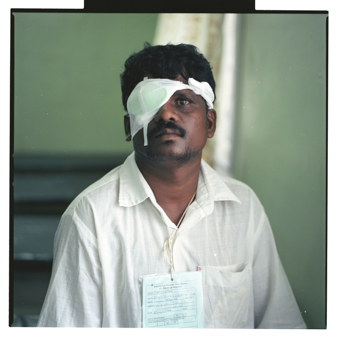 This series of photos are linked to stories about people living with chronic diseases and common underlying risks. This one is about blindness in India.  A man with a bandage over one eye (he had his cataract removed).