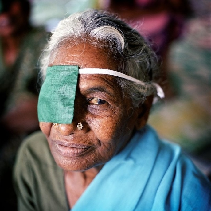 """This particular feature presents Kuzhanthiammal, 67, who regained her vision after free cataract surgery at Aravind Eye Hospital in Madurai, India. She wears a patch on one eye while recovering from cataract surgery.   Soon after the first symptoms appeared, Kuzhanthiammal heard of an eye diagnostic camp that was taking place at a nearby village. She decided to attend, and within a few minutes was diagnosed and registered for free cataract surgery at the Madwai Aravind Eye Hospital the following week. The programme even covered transport costs. """"A bus picked me up with seven other cataract patients and drove us to the hospital,"""" she says. Some 70% of Aravind's eye patients are charity cases; the 30% who are paying customers support these free sight-restoring operations. The hospital also sells abroad three quarters of the lenses it produces, to help finance its activities. Now 67 years old, Kuzhanthiammal successfully underwent surgery on her other eye a few months ago. """"These artificial lenses are a miracle. It's like waking up with your problems gone,"""" she joyfully explains.  This series of photos showcases stories of people from different countries living with chronic diseases and common underlying risks. In a world where more and more people are dying as a result of chronic diseases, and many more millions are disabled, these stories aim to demonstrate the strong and personal impact of chronic diseases on individuals and their families."""