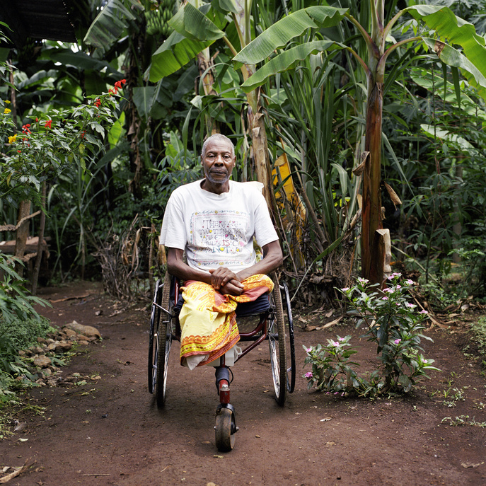 This particular feature presents Jonas Kassa, 65, a diabetic amputee. Despite his symptoms of diabetes, he waited several years before seeking help. Even after his diabetes diagnosis in 1997, he did not stick to health habits for long. He had his right leg amputated in 2003  followed by his left leg in 2004. He died in his home on May 21, 2005. This series of photos showcases stories of people from different countries living with chronic diseases and common underlying risks. In a world where more and more people are dying as a result of chronic diseases, and many more millions are disabled, these stories aim to demonstrate the strong and personal impact of chronic diseases on individuals and their families.