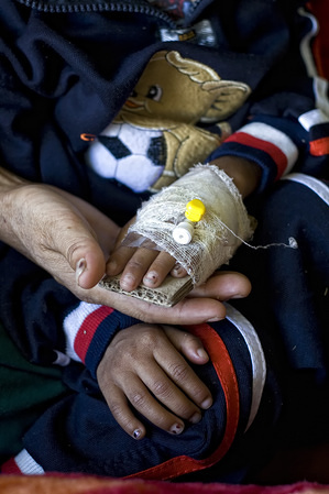 This feature is an illustration about access to health care in India and Indonesia. Several state and charitable hospitals were visited.  A small child's hand held by her mother at a state hospital in Imphal, Manipur, India.