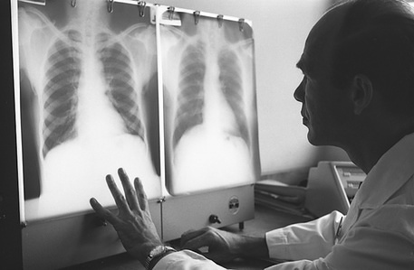 A specialist scrutinizes heart X-rays at the University of Makerere in Kampala, Uganda.