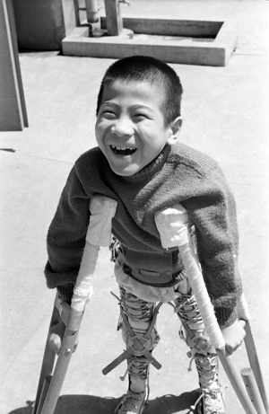 Shigenori Kameyama was little more than a year old when the polio virus found him in the hamlet of Tsukuni on Kyushu Island, some 1,800 kms from Tokyo. He became completely paralysed: he could not lift a finger nor wiggle a toe. Undaunted his parents - a humble family of limited means - decided to move to Tokyo where, several years later, Shigenori was admitted to the Seishi Ryogo En, a hospital, school and home for crippled children founded in 1937 by Dr Kenji Takagi, pioneer of rehabilitation work in Japan. There he began the long battle to regain part use of his limbs - just one of many Japanese children who have been helped indirectly by WHO and UNICEF, by the provision of fellowships for Japanese health personnel to go abroad and study the latest methods of rehabilitation.  After two years of patient endeavour by Shigenori and his nurses, he manages to make one uncertain step forward on crutches. Then comes triumph! Shigenori manages to hobble forward a distance of five feet.